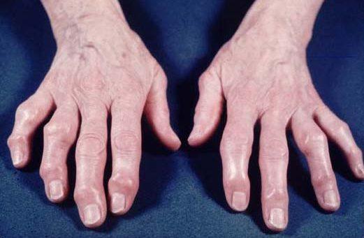 P.R.P. (Plasma Ricco di Piastrine)  nel trattamento dell'artrosi