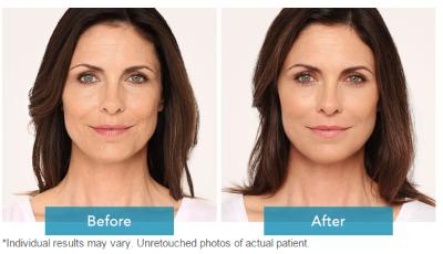Lifting immediato e ringiovanimento duraturo del viso con Radiesse©