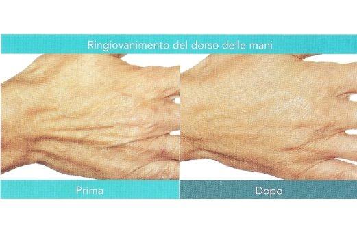 Le mani non tradiranno più la tua età