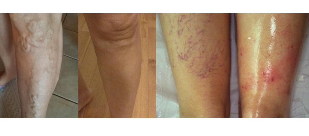 Trattamento vene varicose e capillari