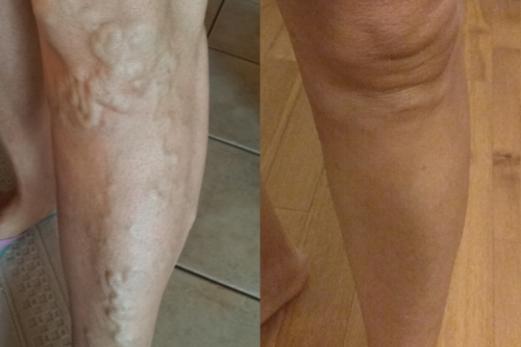 risultati trap fleboterapia rigenerativa vene varicose
