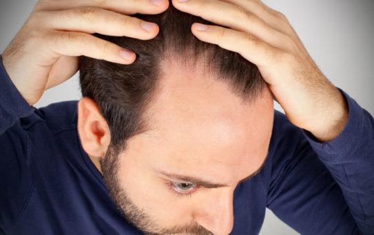 Contrasta la perdita dei capelli con la P.R.P. (Plasma Ricco di Piastrine)