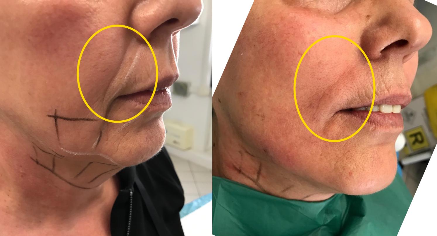 Trattamento rughe naso geniene e della zona mentoniera con Radiesse